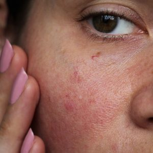 Inflammation and its effect on skin health