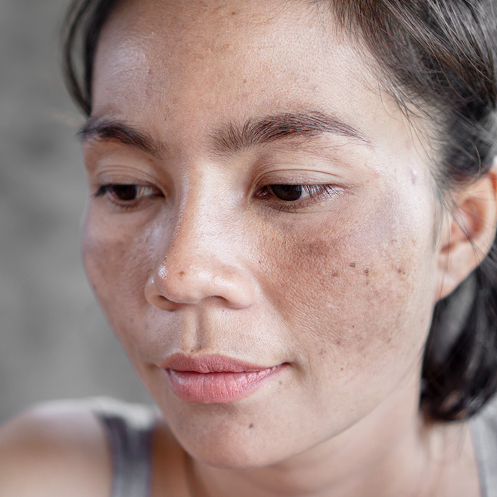 Hyperpigmentation disorders treatment